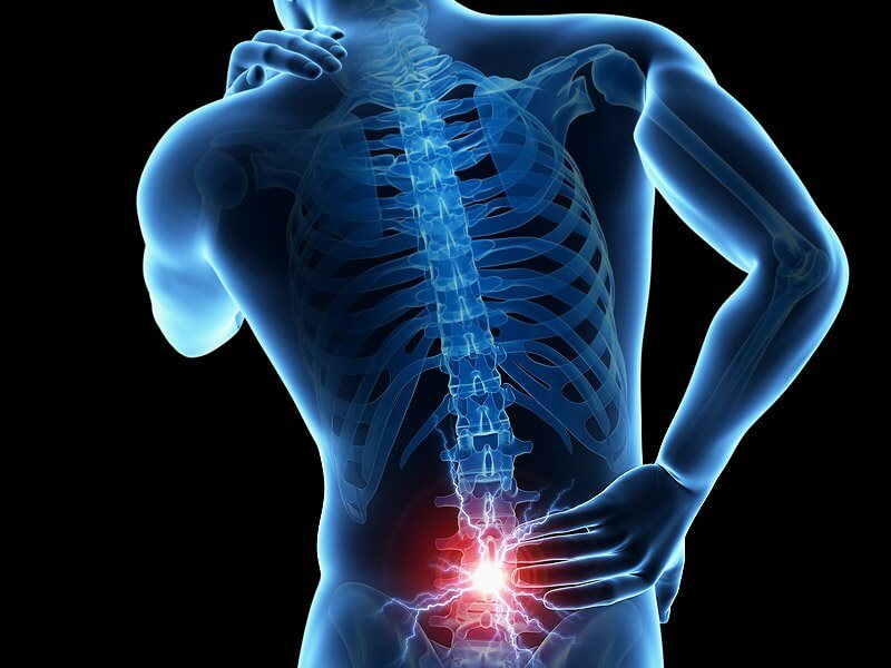 What You Might Not Know About Your Back Pain