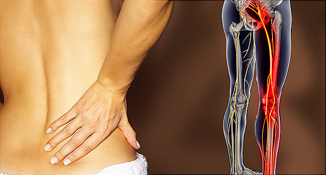 The 4 Best Exercises to Help Beat Your Sciatica Symptoms